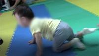 阳光鹿童康复中心--不随意运动型脑性瘫痪
